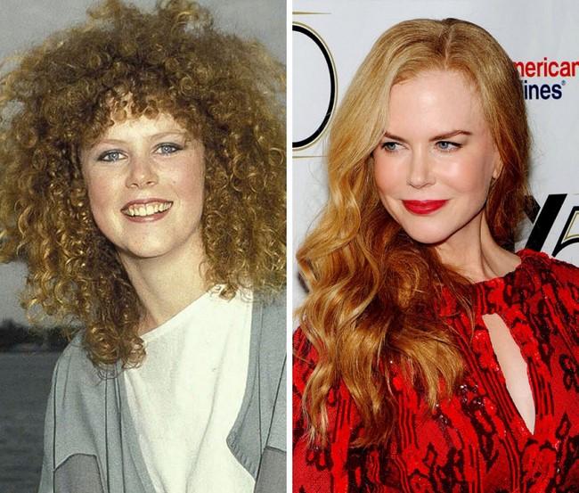 Nicole Kidman 1983