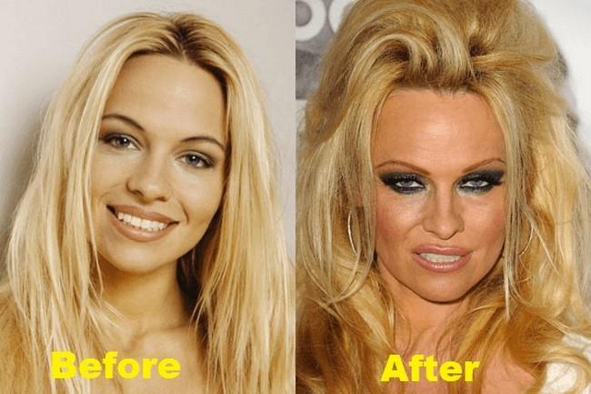 2. Pamela Anderson