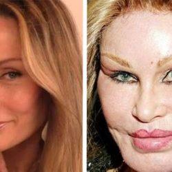 12 színésznő, akinek a plasztika tönkretette a karrierjét
