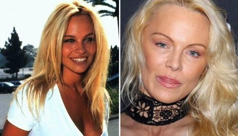 4)Pamela Anderson