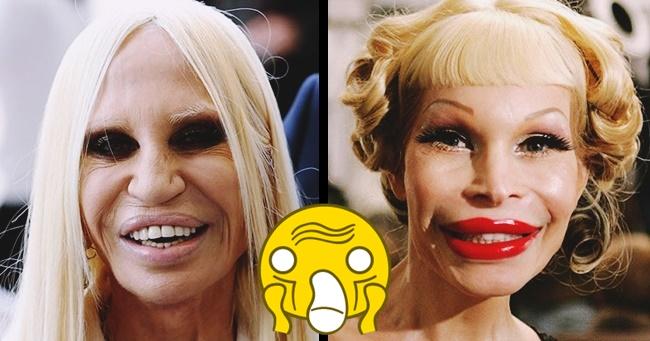 12 híresség, akinek finoman szólva sem volt sikeres a plasztikai műtétje