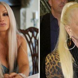 15 híresség, aki brutálisan tönkretette magát a plasztikai beavatkozásokkal